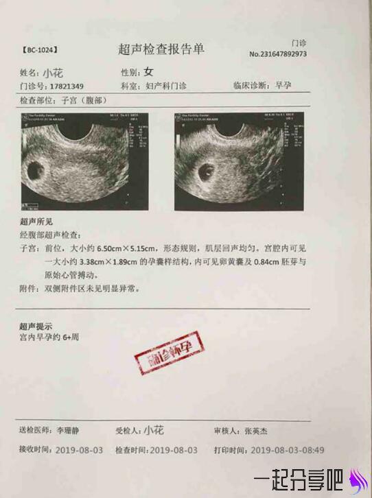 生成B超 怀孕报告恶搞软件 拿去吓唬你的男(女)朋友 第2张